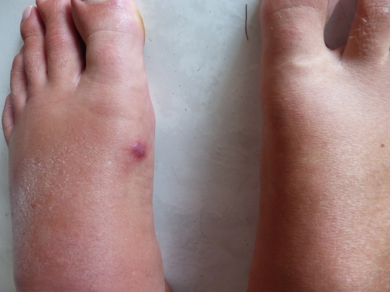 I got stung by a ray or something, and a couple of days later my foot swelled up like a sausage. Back in Alajuela I went to a clinic for some anti-biotics. Glad it got me and not Q!